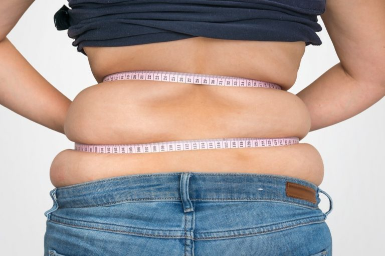 Understanding gastric band surgery: How it helps with weight loss