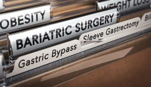 Files of gastric sleeve gastrectomy