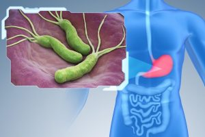 A picture of Helicobacter Pylori infection