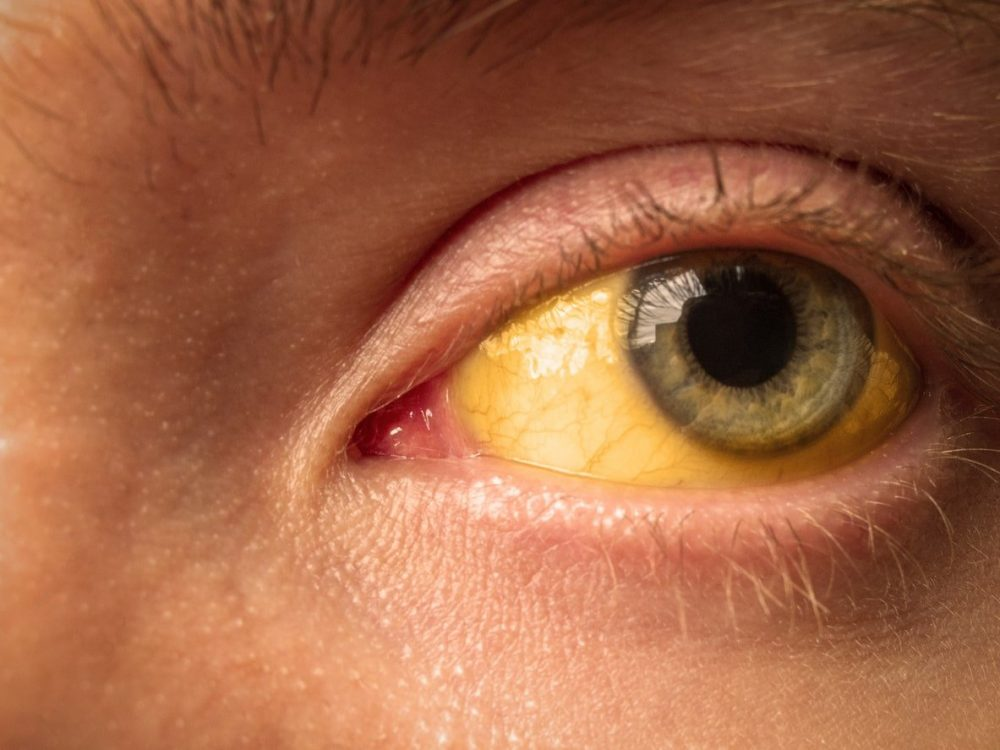 Jaundice in adults: Why does it happen?