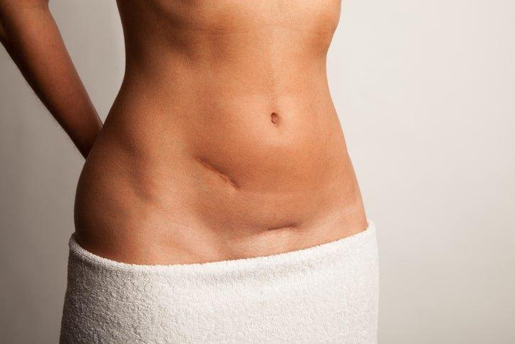 Lower abdomen where hernia is located