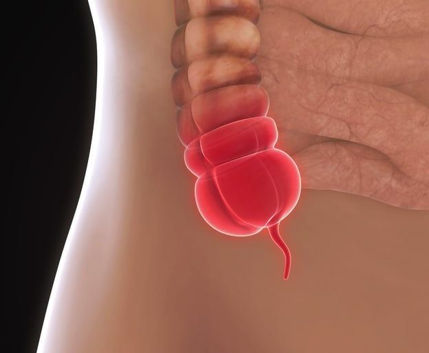 Gastric pain or appendicitis? Here's how to tell