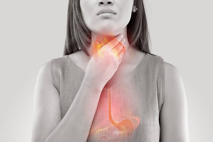 Lady suffering from Acid reflux
